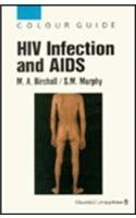 HIV Infection And AIDS (Colour Guide)
