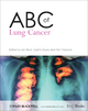 ABC of Lung Cancer - Ian Hunt; Martin M. Muers; Tom Treasure
