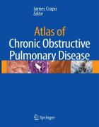 Atlas of Chronic Obstructive Pulmonary Disease