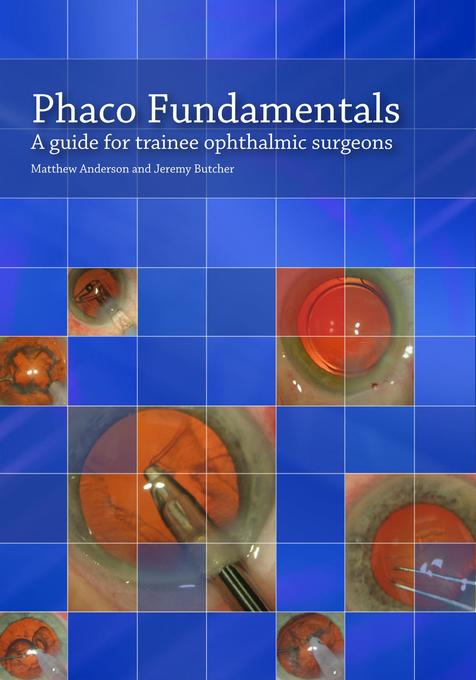 Phaco Fundamentals als eBook von Matthew Anderson, Jeremy Butcher - Troubador Publishing